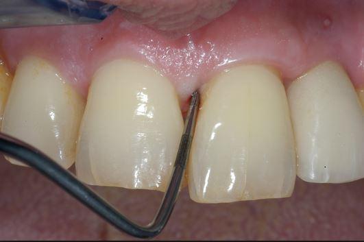 odontoiatra.it, parodontologia