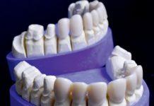 odontoiatra.it, prognatismo, protesi, bruxismo, CAD/CAM