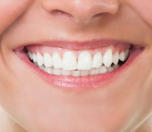 odontoiatra.it, protesi, impianti